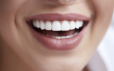 dental-veneer-tips-825x360
